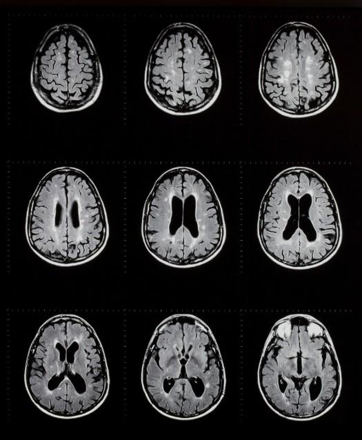 MS Brain MRI